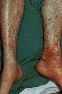 purpuric rash of HSP