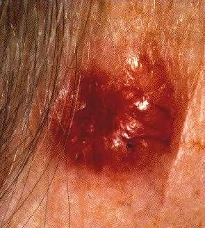 BASAL CELL CARCINOMA - CLOSE UP
