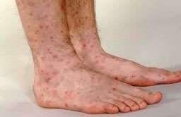 Erythema multiforme on feet