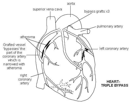 Heart coronary artery bypass diagram patient heart coronary artery bypass diagram ccuart Gallery