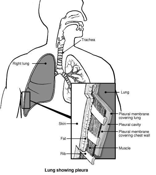 Chest wall and pleura diagram patient chest wall and pleura diagram ccuart Choice Image
