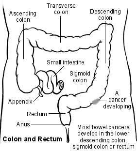 Large bowel showing a cancer